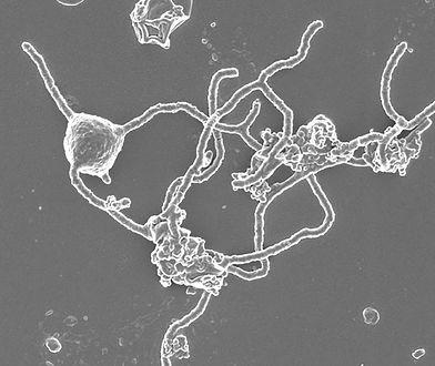 Prometearcheon - mikroorganizm, który może wyjaśnić wielką zagadkę.