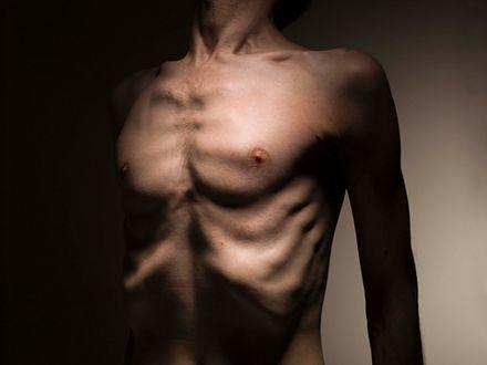 Anoreksja wśród mężczyzn – nowe oblicze znanej choroby