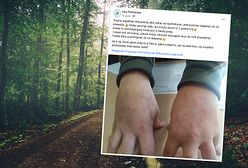 """Leśnicy pokazali zdjęcia. """"Zmasowany nalot"""""""
