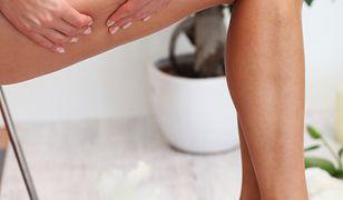 Cellulit wodny najczęściej powstaje w wyniku zaburzeń mikrokrążenia krwi.