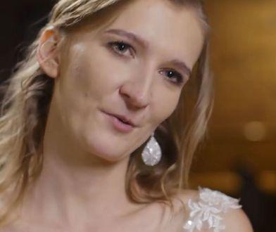 """Iga ze """"Ślubu od pierwszego wejrzenia"""" przeszła operację plastyczną. Zdradziła szczegóły"""