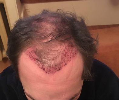 Zabieg przeszczepu włosów wykonuje się w znieczuleniu miejscowym