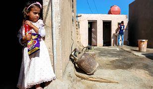 W Iraku żyje dziewczynka, która cierpi na rzadką chorobę skóry.