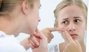 Trądzik kosmetyczny bywa trudny do zwalczenia