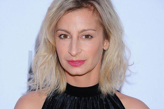 Magdalena Schejbal pokazała posiniaczoną twarz