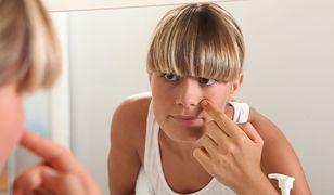 Zaskórniki mogą powodować powstawanie wyprysków i stanów zapalnych skóry