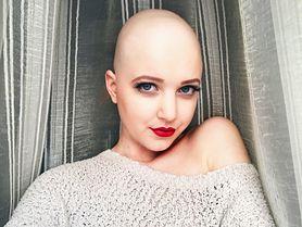 """Claudia - jej choroba, skutki chemioterapii, pomoc od psychologa, """"Pochłonięta"""" inspiruje"""