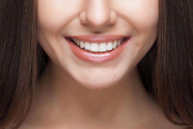 Uśmiechnij się pięknie. Niezawodne sposoby na białe zęby!