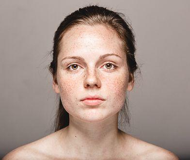Przebarwienia na skórze są spowodowane nadmiarem melaniny.