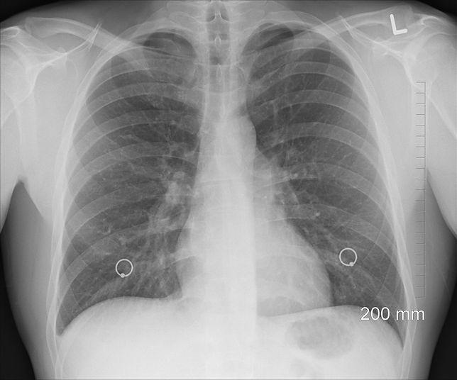 USG płuc pozwoli poprawnie zdiagnozować COVID-19