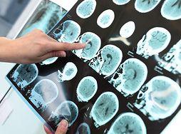Poprawiają pamięć i koncentację. 6 produktów, które chronią przed chorobą Alzheimera