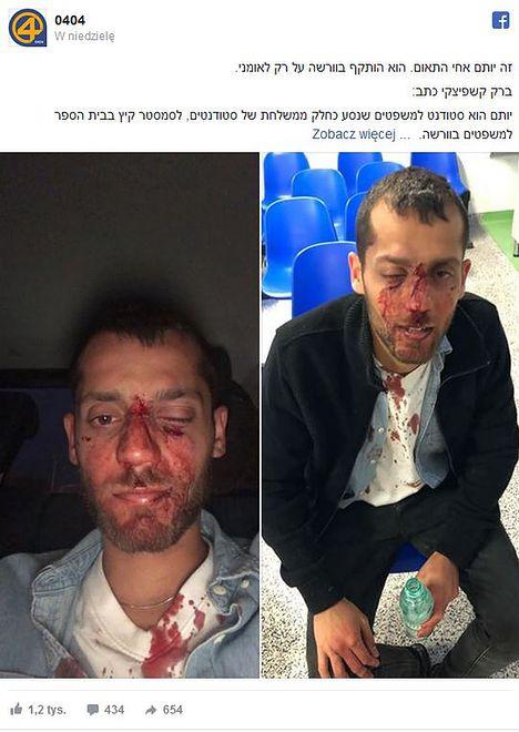 Zdjęcia w sieci opublikował brat jednego z pobitych studentów