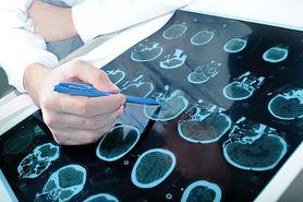Nowotwór mózgu zniknął dzień przed operacją. Pacjent twierdzi, że to dzięki modlitwie