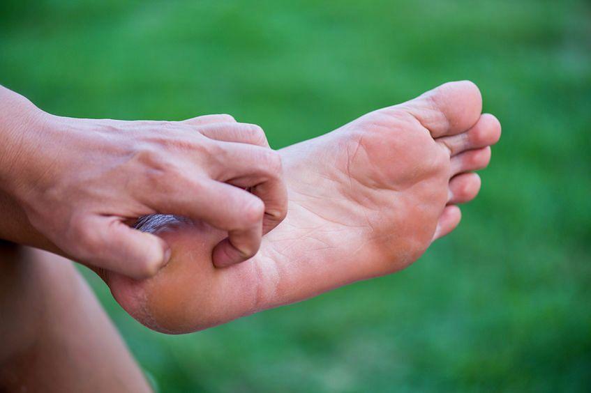 Opuchnięte stopy