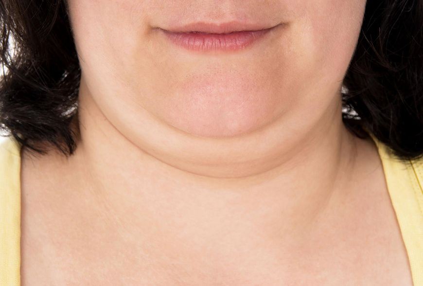 Drugi podbródek jest częsty u osób z nadwagą [123rf.com]
