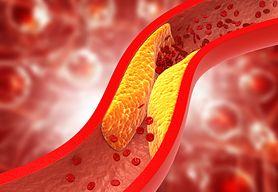 Hipercholesterolemia - ryzyko związane z wysokim poziomem cholesterolu. Jak obniżyć cholesterol?