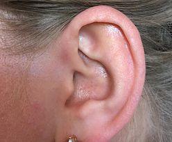Pojawia się na uszach. Objaw, który świadczy o chorym sercu