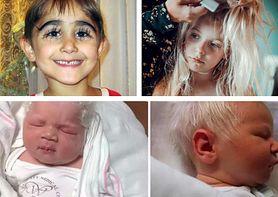 Białe lub siwe włosy u malucha. Niezwykłe dzieci mogą mieć poważny problem