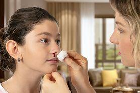 Krwawienie z nosa - dlaczego nos krwawi? Przyczyny krwawienia z nosa