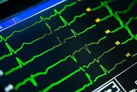 Interpretacja badania EKG serca