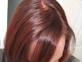 Łojotokowe zapalenie skóry głowy - przyczyny i objawy, leczenie