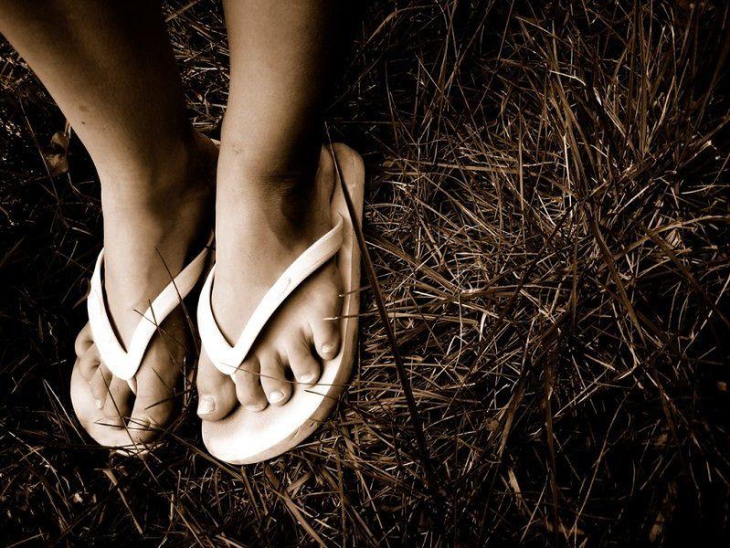 Choroby stóp - palec młoteczkowy