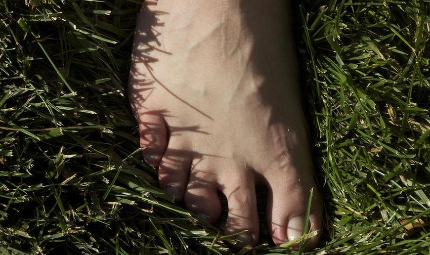 Choroby stóp - grzybica paznokci