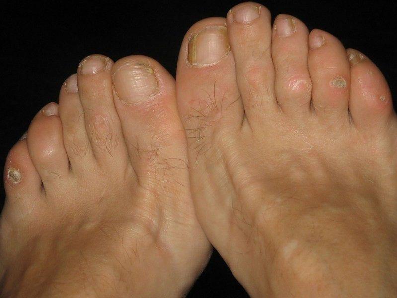 Choroby stóp - grzybica