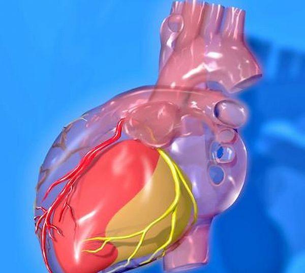 Atlas anatomiczny - tętnice wieńcowe w obrębie serca