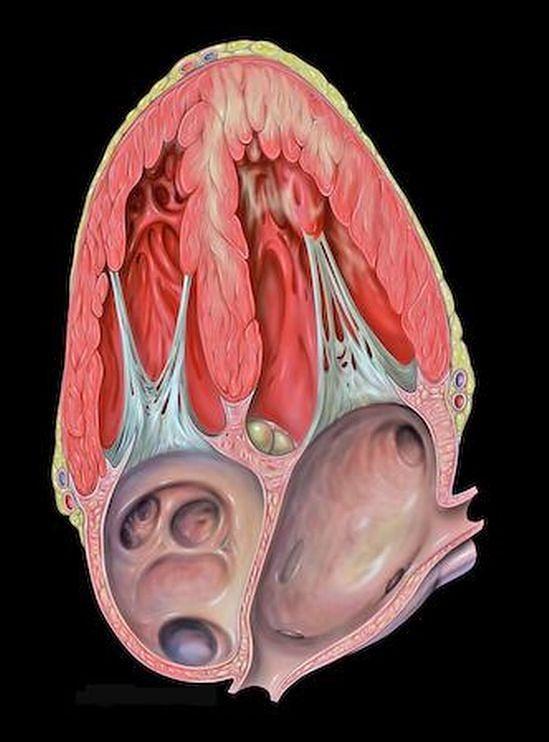 Atlas anatomiczny - serce z dysfunkcją przedniej ściany
