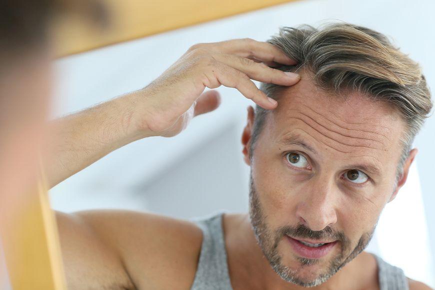 Choroby powodujące nadmierne wypadanie włosów
