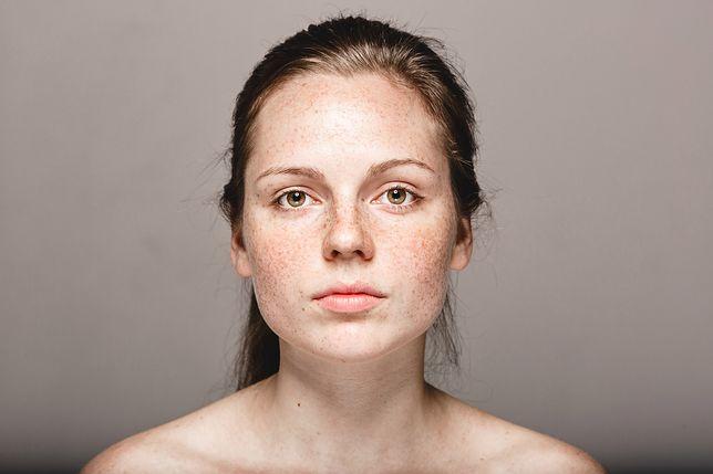 Przebarwienia skóry - przyczyny pojawiania się plam i metody ich usuwania
