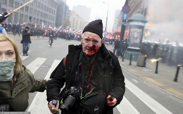 """Marsz Niepodległości. Fotoreporter """"Tygodnika Solidarność"""" Tomasz Gutry poważnie zraniony"""