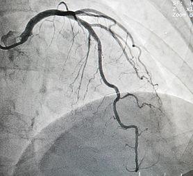 4 ciche znaki, świadczące o tym, że możesz mieć zatkane tętnice