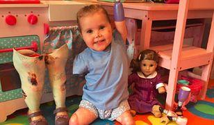 2-latka, której amputowano wszystkie kończyny, otrzymała lalkę wyglądającą tak samo jak ona