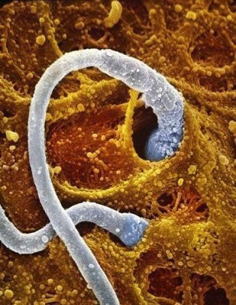 Plemniki wnikają w zewnętrzną warstwę komórki jajowej