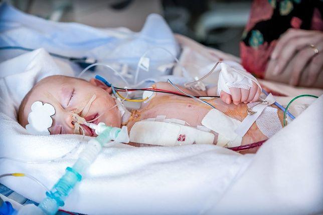 """W CZD wykonano już tysiąc takich zabiegów na sercach dzieci. """"Wciąż są trudności"""""""
