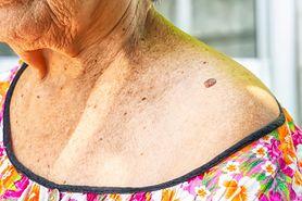 Dermatofibroma - przyczyny, objawy, leczenie