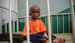Niedożywione dziecko w szpitalu w Mogadiszu, stolicy Somalii