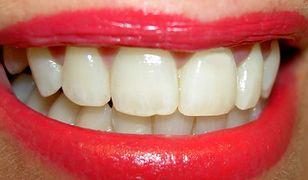 Zęby białe jak śnieg