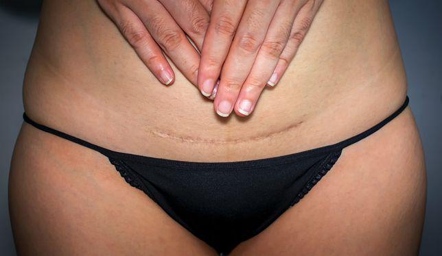 Kobiety wstydzą się ciała po cesarskim cięciu. Niepotrzebnie