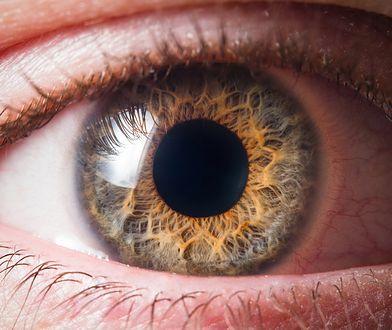 Miała w oku cztery nicienie. Mieszkanka Nebraski mogła stracić wzrok