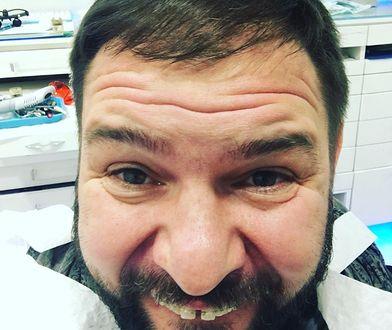 Tomasz Karolak pozbywa się diastemy!