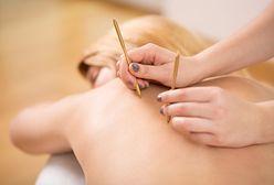 Akupunktura może pomóc w walce z nadciśnieniem