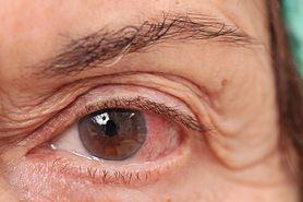 Oko - wady wzroku, higiena, dieta. Choroby oczu jako skutek cukrzycy, nadciśnienia czy alergii