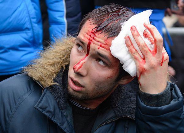 Prozachodni aktywista ranny podczas starć z prorosyjskimi demonstrantami, Charków