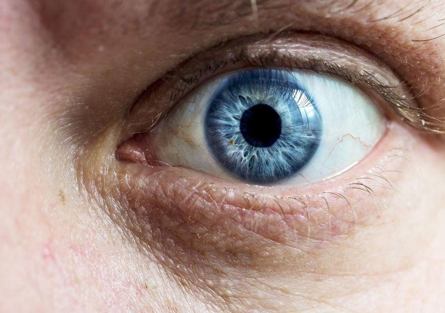 Wytrzeszcz oczu