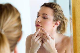Trądzik - wizyta u dermatologa, najczęstsze pytania, dieta, antykoncepcja