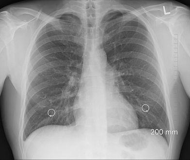 Koronawirus. USG płuc pozwoli poprawnie zdiagnozować COVID-19?