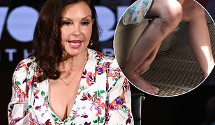 Ashley Judd ledwo uszła z życiem. Pokazała pokiereszowane nogi